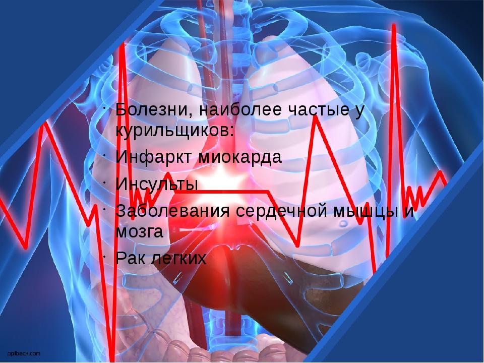 Болезни, наиболее частые у курильщиков: Инфаркт миокарда Инсульты Заболевани...