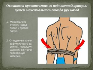 Остановка кровотечения из подключной артерии путём максимального отвода рук н