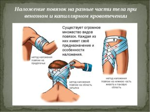 Наложение повязок на разные части тела при венозном и капиллярном кровотечени