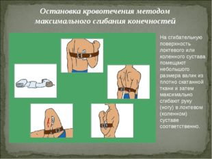 Остановка кровотечения методом максимального сгибания конечностей На сгибател