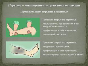 Перелом – это нарушение целостности кости Переломы бывают закрытые и открытые