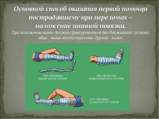 Основной способ оказания первой помощи пострадавшему при переломах – наложени