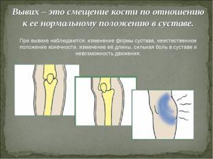 Вывих – это смещение кости по отношению к ее нормальному положению в суставе.