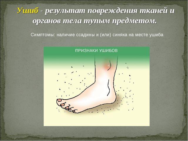 Ушиб - результат повреждения тканей и органов тела тупым предметом. Симптомы:...