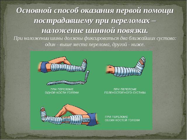 Основной способ оказания первой помощи пострадавшему при переломах – наложени...
