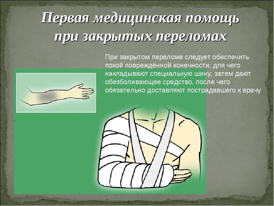 Первая медицинская помощь при закрытых переломах При закрытом переломе следуе...