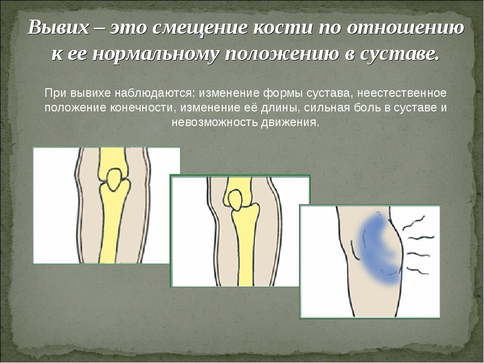 Вывих – это смещение кости по отношению к ее нормальному положению в суставе....