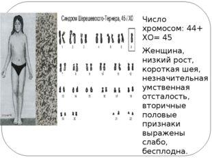 Число хромосом: 44+ ХО= 45 Женщина, низкий рост, короткая шея, незначительна