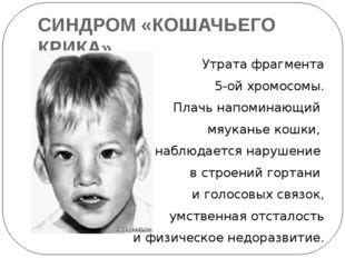 СИНДРОМ «КОШАЧЬЕГО КРИКА» Утрата фрагмента 5-ой хромосомы. Плачь напоминающий