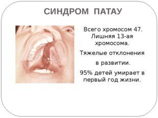 СИНДРОМ ПАТАУ Всего хромосом 47. Лишняя 13-ая хромосома. Тяжелые отклонения в