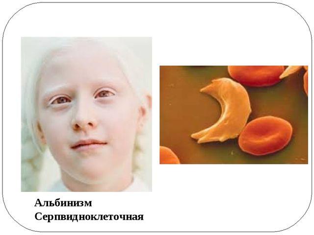 Альбинизм Серпвидноклеточная анемия