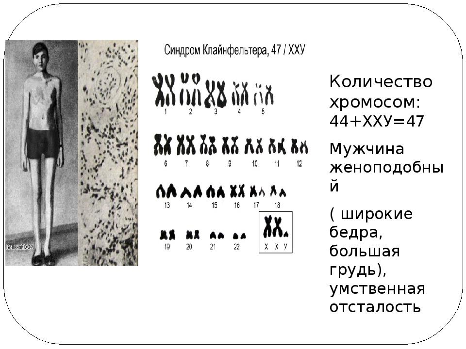 Количество хромосом: 44+ХХУ=47 Мужчина женоподобный ( широкие бедра, большая...