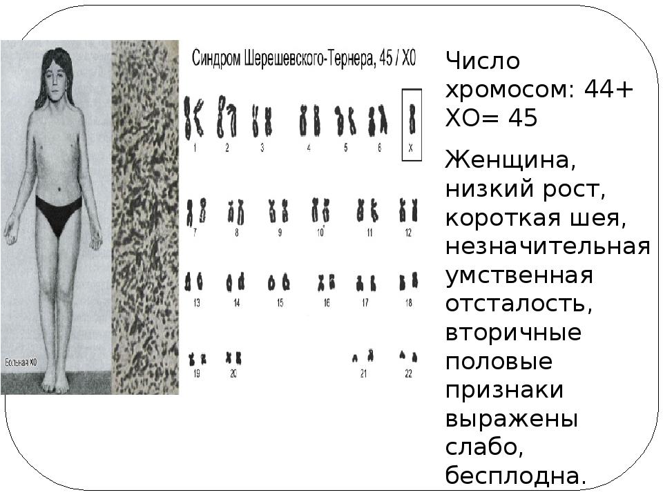 Число хромосом: 44+ ХО= 45 Женщина, низкий рост, короткая шея, незначительна...