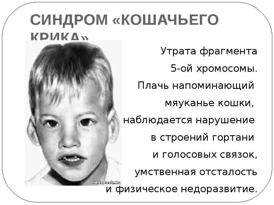 СИНДРОМ «КОШАЧЬЕГО КРИКА» Утрата фрагмента 5-ой хромосомы. Плачь напоминающий...