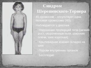 Синдром Шерешевского-Тернера 45 хромосом – отсутствует одна половая хромосома
