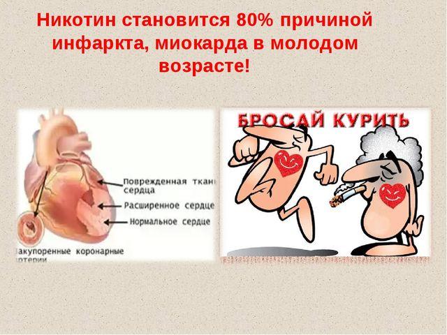 Никотин становится 80% причиной инфаркта, миокарда в молодом возрасте!