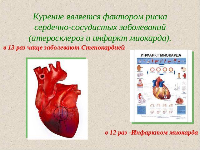 Курение является фактором риска сердечно-сосудистых заболеваний (атеросклеро...