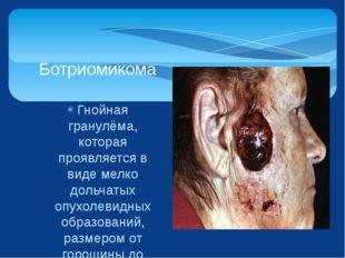 Гнойная гранулёма, которая проявляется в виде мелко дольчатых опухолевидных о