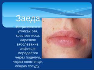 Встречается в уголках рта, крыльев носа. Заразное заболевание, инфекция перед