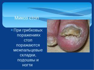 При грибковых поражениях стоп поражаются межпальцевые складки, подошвы и ногт
