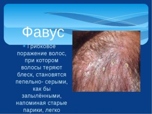 Грибковое поражение волос, при котором волосы теряют блеск, становятся пепель