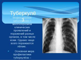 Инфекционное заболевание с многообразием клинических проявлений и поражений р