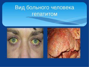 Вид больного человека гепатитом