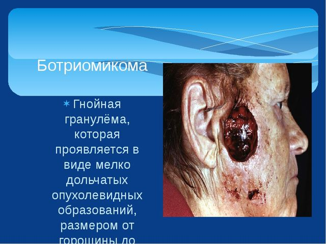 Гнойная гранулёма, которая проявляется в виде мелко дольчатых опухолевидных о...
