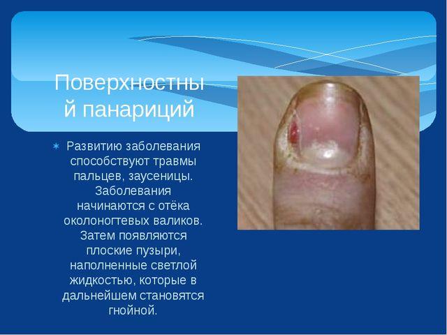 Развитию заболевания способствуют травмы пальцев, заусеницы. Заболевания начи...