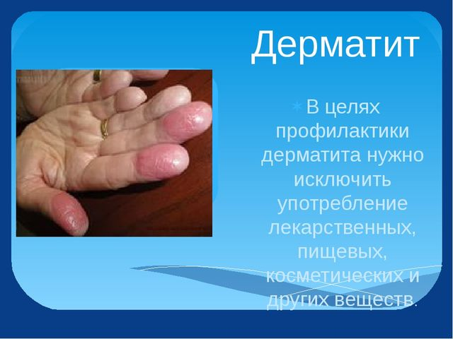 Дерматит В целях профилактики дерматита нужно исключить употребление лекарств...