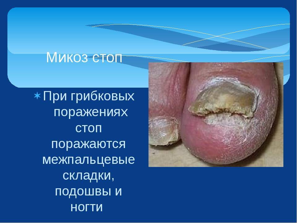 При грибковых поражениях стоп поражаются межпальцевые складки, подошвы и ногт...