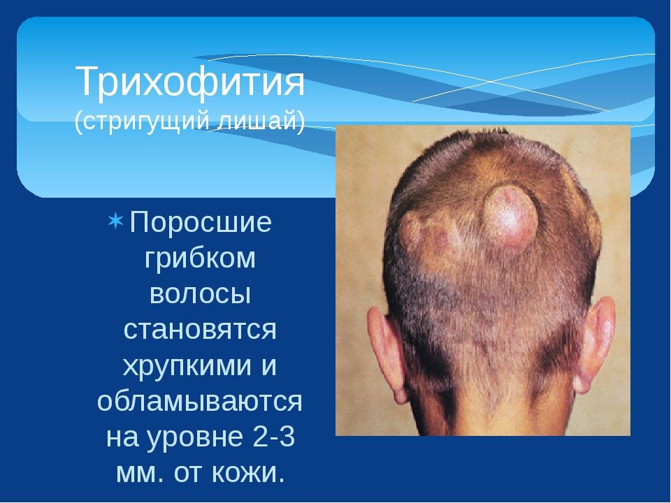 Поросшие грибком волосы становятся хрупкими и обламываются на уровне 2-3 мм....