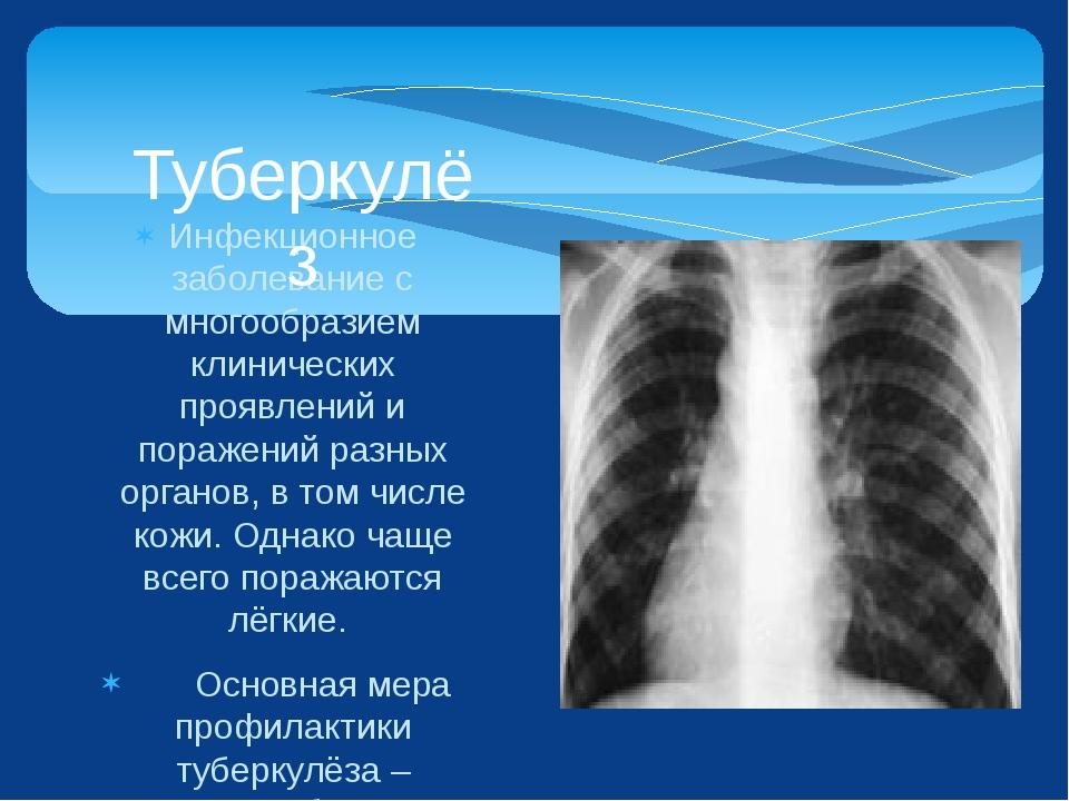 Инфекционное заболевание с многообразием клинических проявлений и поражений р...