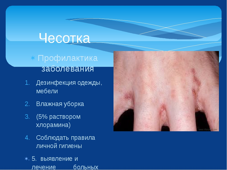 Профилактика заболевания Дезинфекция одежды, мебели Влажная уборка (5% раство...