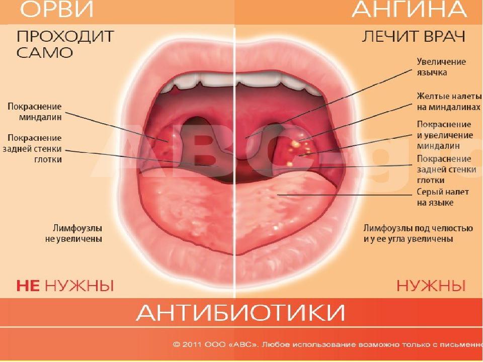 Боли в горле - болезни и лекарства