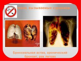 Бронхиальная астма, хронический бронхит, рак легких Болезни, вызываемые курен