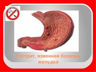 Гастрит, язвенная болезнь желудка