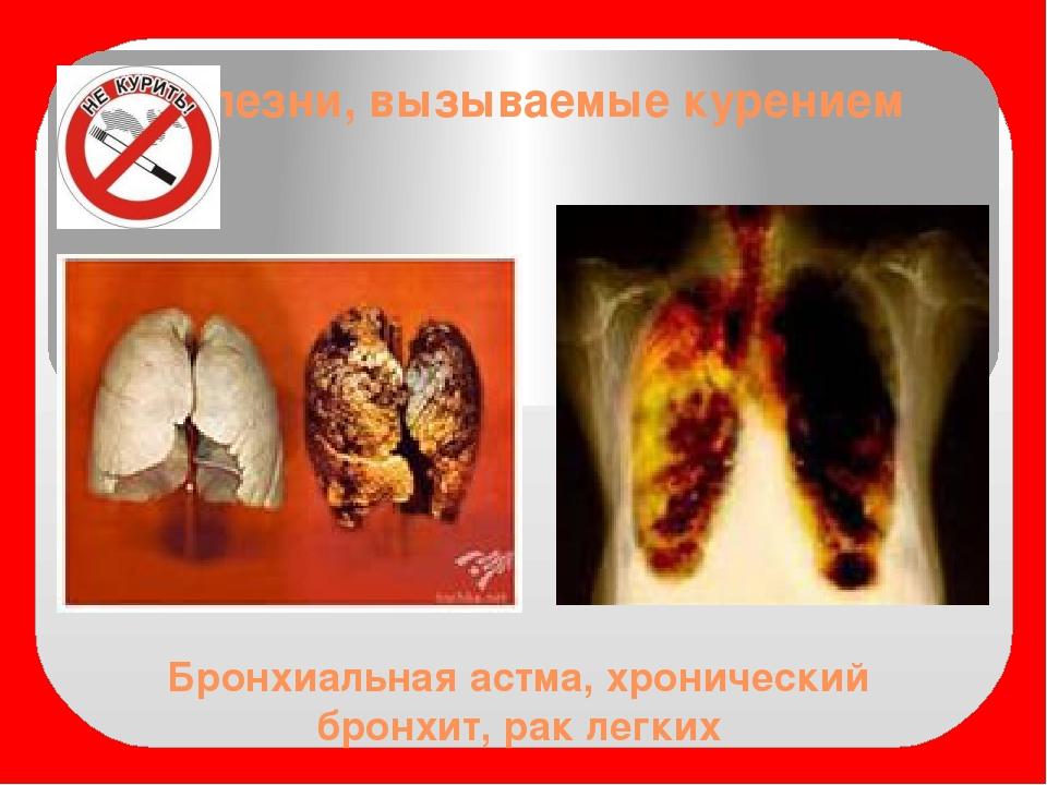 Бронхиальная астма, хронический бронхит, рак легких Болезни, вызываемые курен...