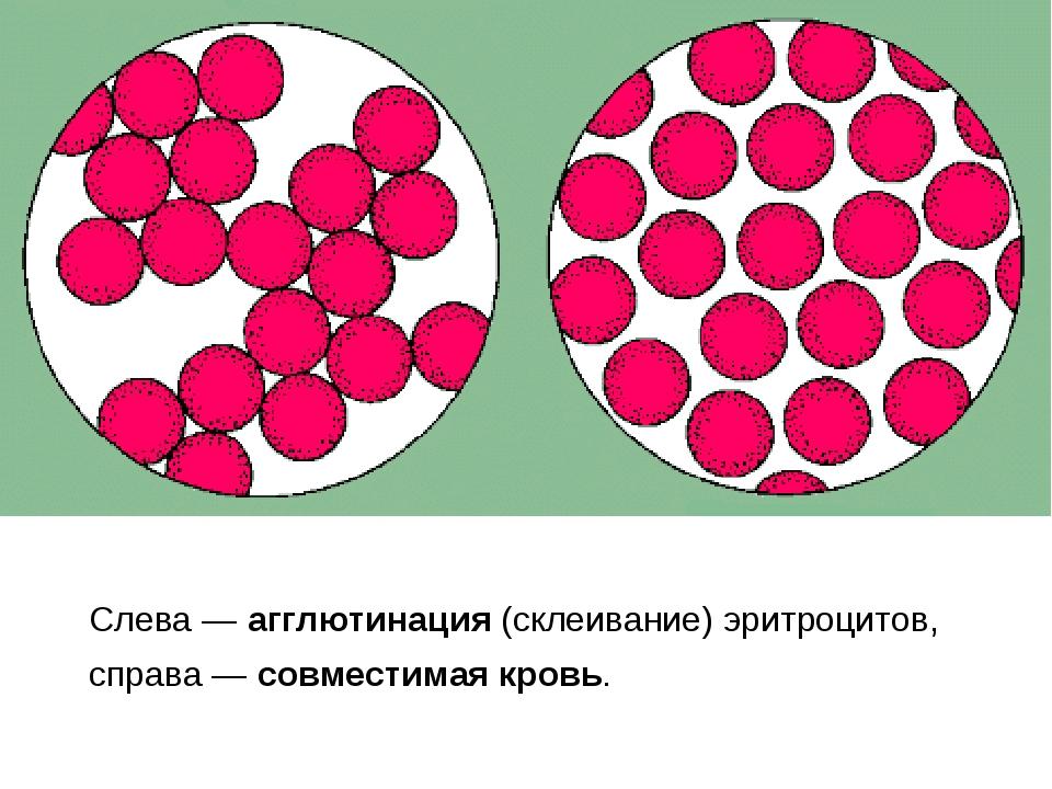Слева — агглютинация (склеивание) эритроцитов, справа — совместимая кровь.
