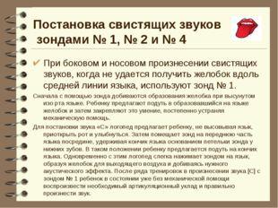 Постановка свистящих звуков зондами № 1, № 2 и № 4 При боковом и носовом прои