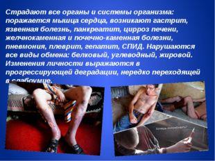 Страдают все органы и системы организма: поражается мышца сердца, возникают г