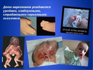 Дети наркоманов рождаются уродами, слабоумными, страдающими серьезными психич