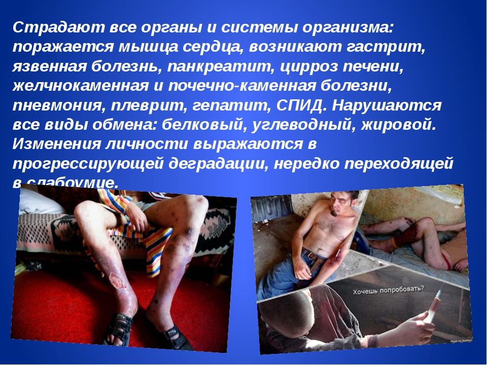 Страдают все органы и системы организма: поражается мышца сердца, возникают г...