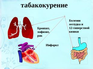 Болезни, связанные с курением Бронхит, эмфизит, рак Инфаркт Болезни желудка