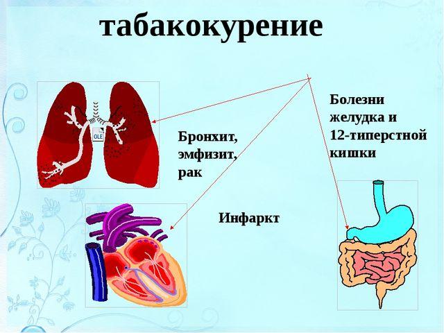 Болезни, связанные с курением Бронхит, эмфизит, рак Инфаркт Болезни желудка...