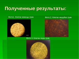 Полученные результаты: Фото 2. Клетки чешуйки лука Фото 3. Клетки пера лука Ф
