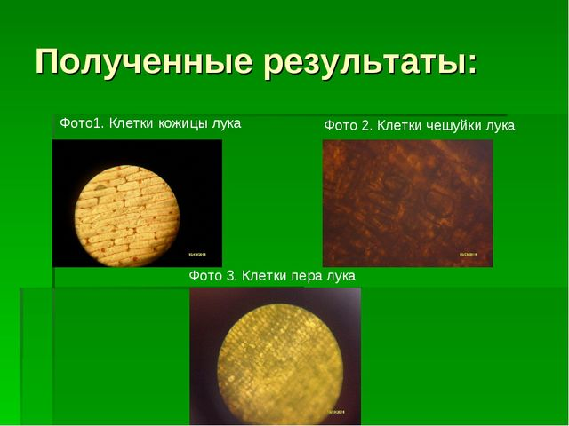 Полученные результаты: Фото 2. Клетки чешуйки лука Фото 3. Клетки пера лука Ф...
