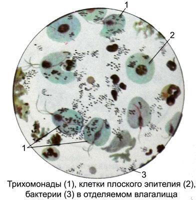 Эпителий плоский влагалище