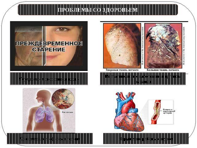 ПРОБЛЕМЫ СО ЗДОРОВЬЕМ Ухудшение состояния кожи Хроническая эмфизема легких На...