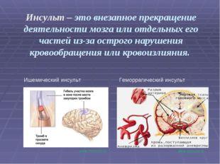 Инсульт – это внезапное прекращение деятельности мозга или отдельных его част